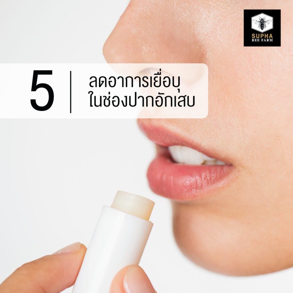 น้ำผึ้งลดอาการเยื่อบุในช่องปากอักเสบ
